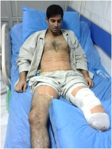 Hassan Mohammadi,  wounded in fourth missile attack against Camp Liberty, has lost one of his legs